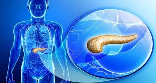 پانکراتیت چه نوع بیماری است و چگونه به وجود میآید؟